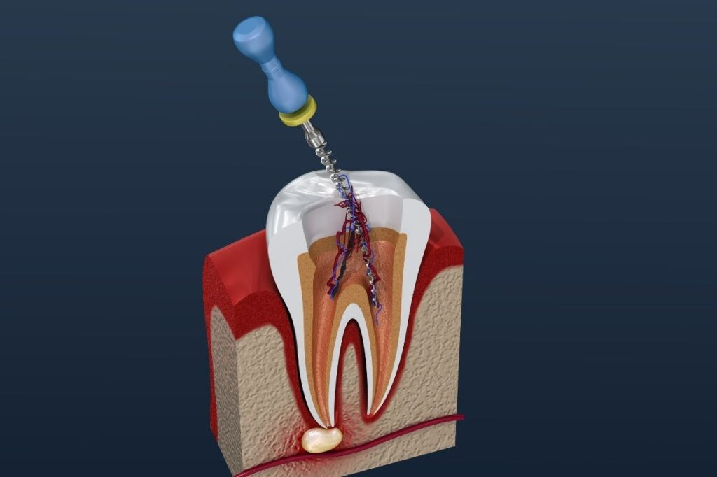 Does a Root Canal Hurt?