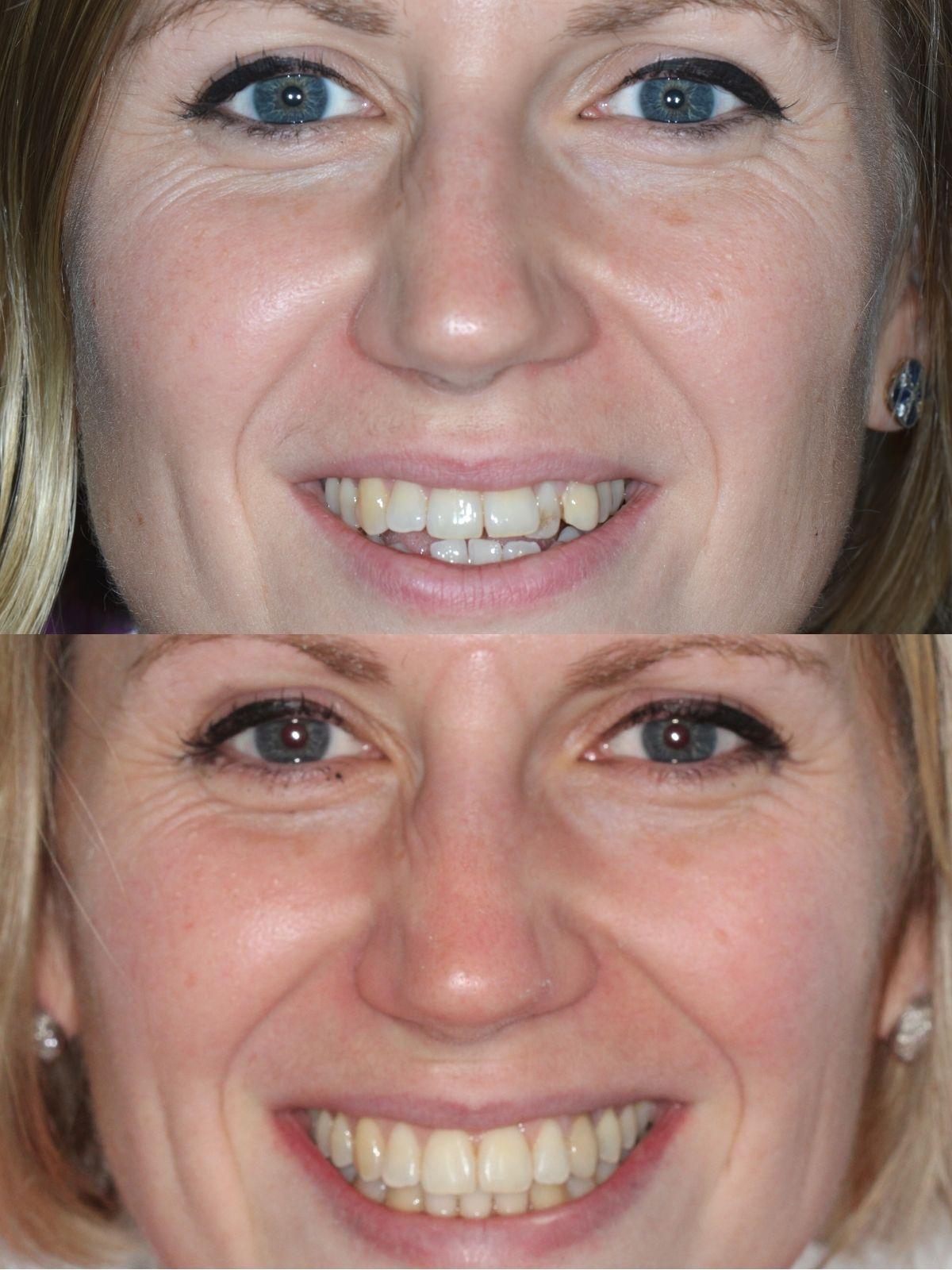 Teeth Straightening at Kelmscott Dental