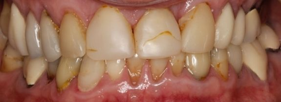 Dental Implants, Bonding and Crowns