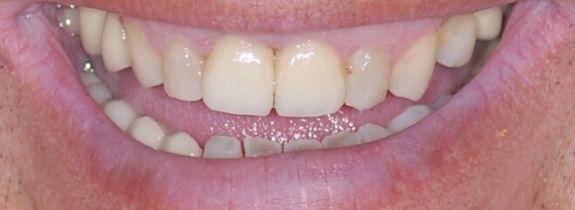 Two Single Dental Implants