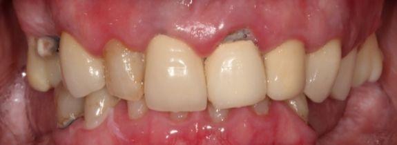 All-On-4® Dental Implants