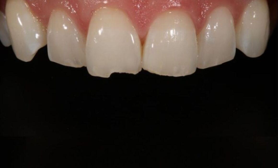 Why-do-my-teeth-chip-so-easily-Kelmscott-Dental